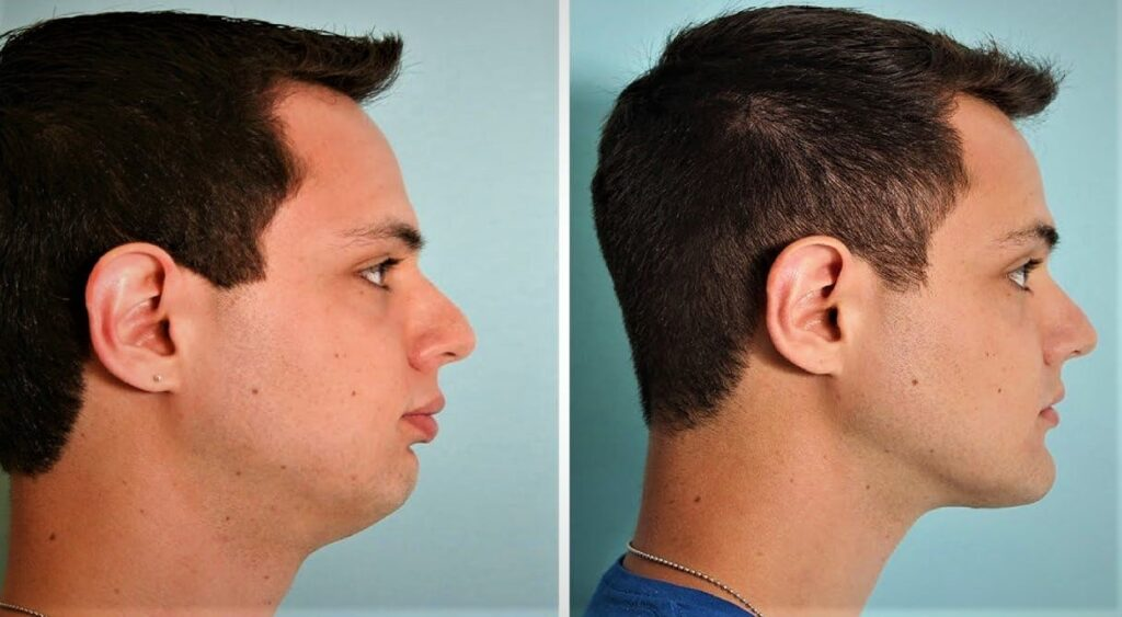 Chiseled Jawline Exercise