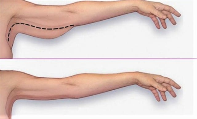 Exercises For Flabby Arms and Bat Wings