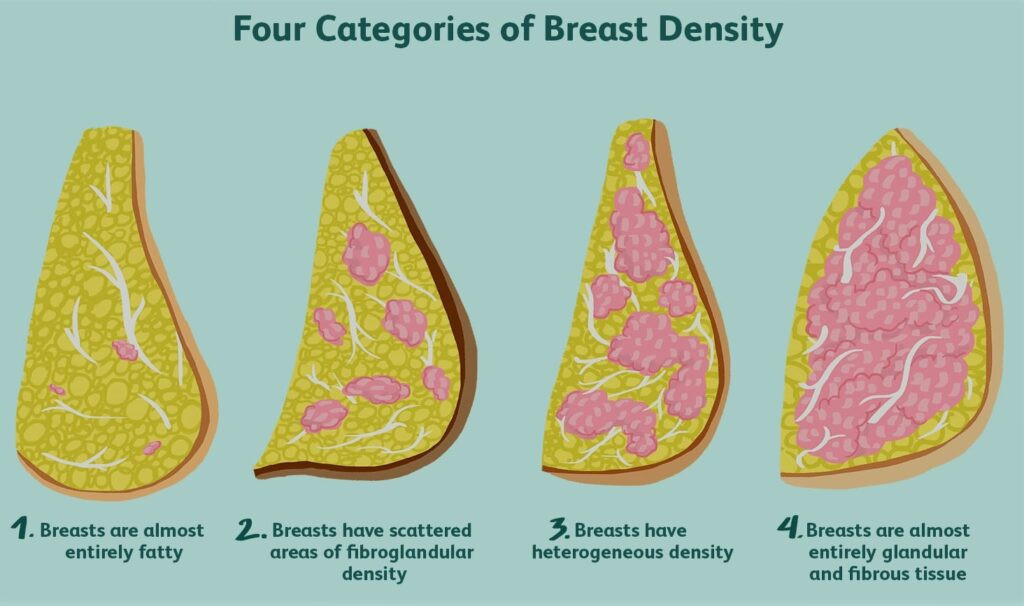 High Breast Density